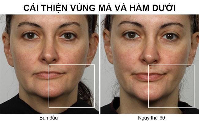 Máy massage nâng cơ mặt Nuface Trinity Facial Wrinkle Reducer Gift Set